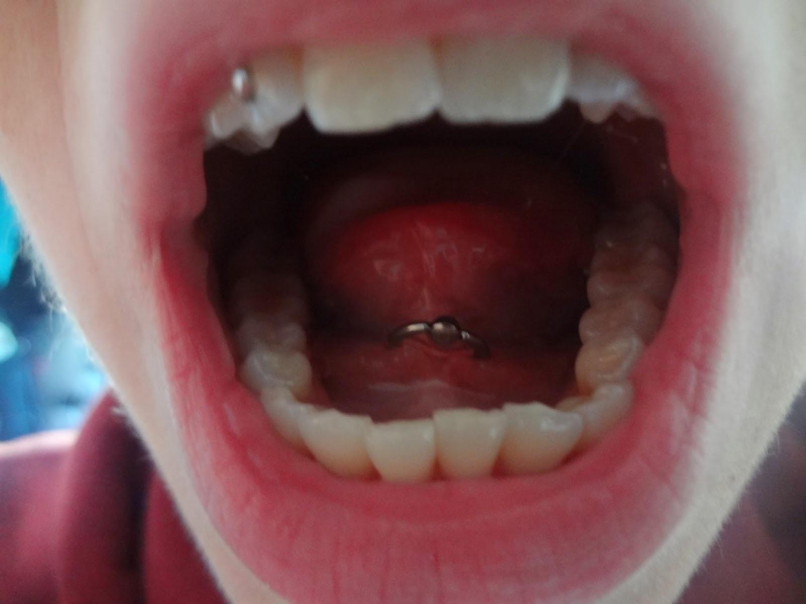Muskelkater Zunge