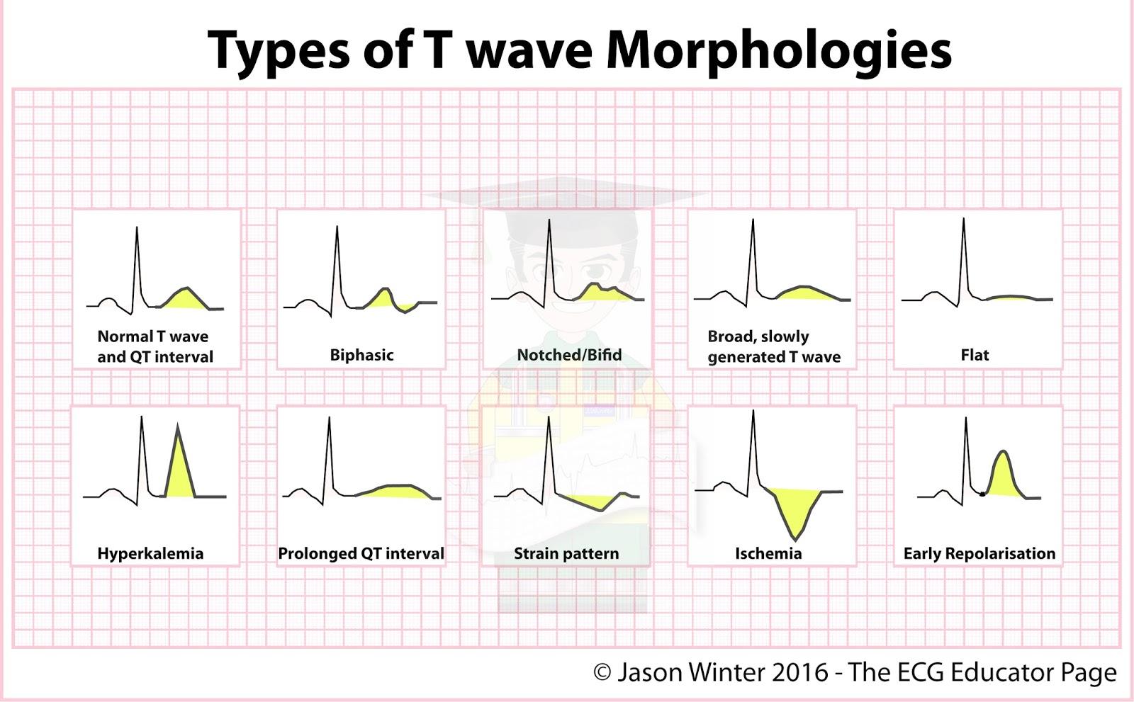 Ecg Educator Blog Types Of T Waves