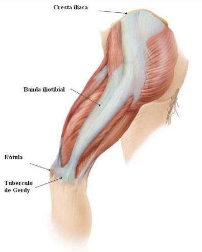 dolor en musculo tensor de la fascia lata