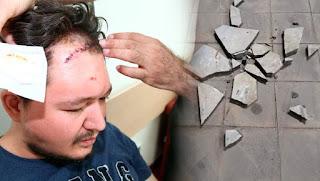 Doktorun Kafasına Mermer İle Vurdu
