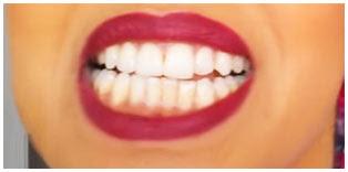 como disimular los dientes amarillos