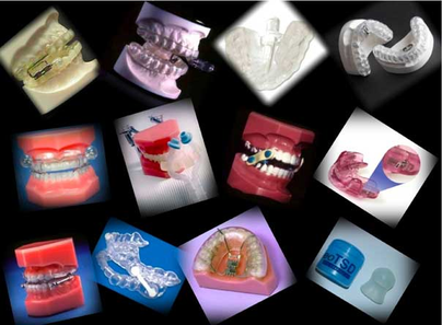 Oral Appliances  for Treating Snoring & Sleep Apnea - Treatment Options for Obstructive Sleep Apnea