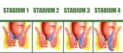 Tingkatan Atau Stadium Wasir