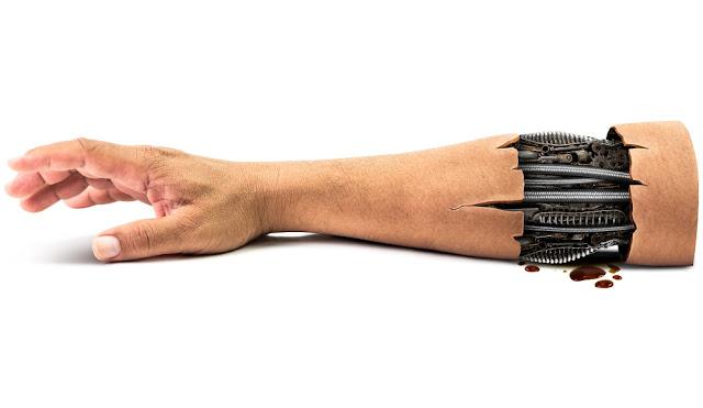 human-skin-transplant-robotic