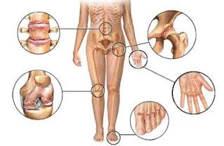 Peyebab dan cara mengobati artritis