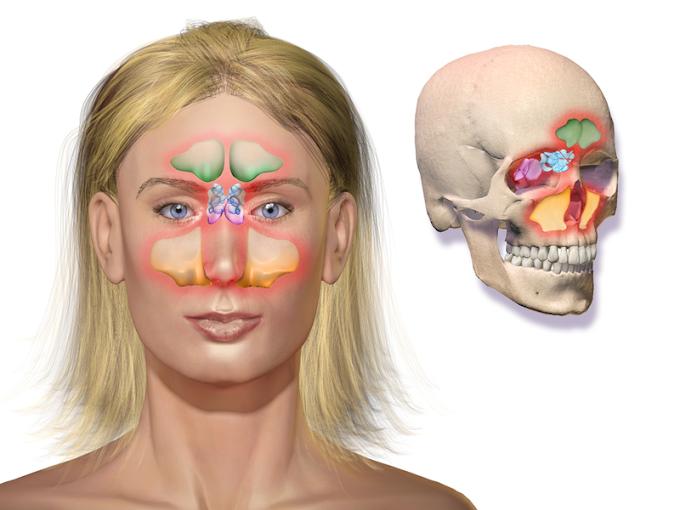Masajes faciales buenos para la sinusitis