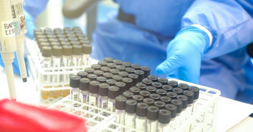 Mujer de 55 años años se convierte en el segundo caso positivo de Coronavirus en La Libertad