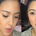 Kim Chiu Addresses  Nose Job Issue