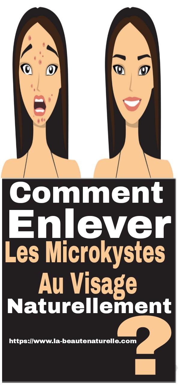 Comment enlever les microkystes au visage naturellement ?