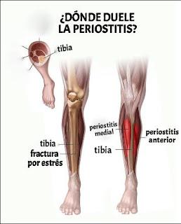 Periostitis tibial - rehabilitación fisica