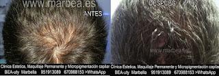 Micropigmentación capilar Fuengirola CLÍNICA ESTÉTICA MARBELLA: Te ofrecemos la alta calidad de  nuestra asistencia, con los mejores expertos en micropigmentación capilar y maquillaje permanente en Fuengirola y Marbella