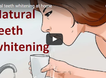 Lifestyle Tips for  teeth whitening naturally