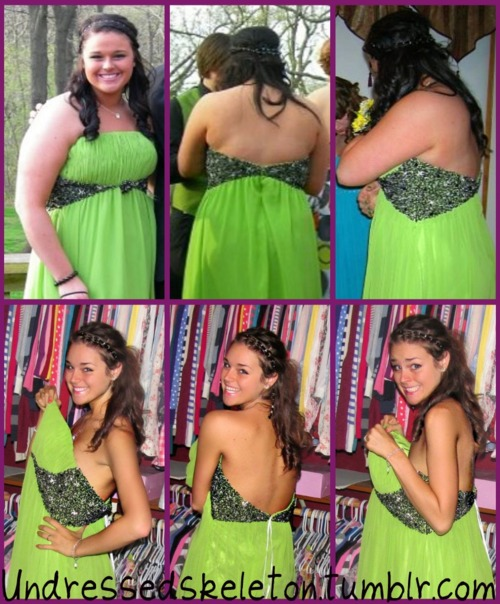 Weight loss - Before And After - The Most Inspiring Pictures Of The Year!