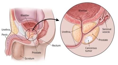 Prostate Gland पौरुष ग्रन्थि वृद्धि : कारण , लक्षण और चिकित्सा