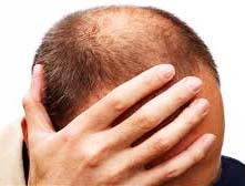 Cara mengobati kepala botak menggunakan lidah buaya dan kemiri