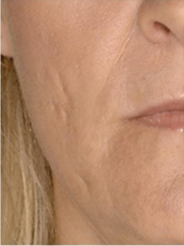 5 Reasons To Start Fillers in Your 40s - The Skin Radar