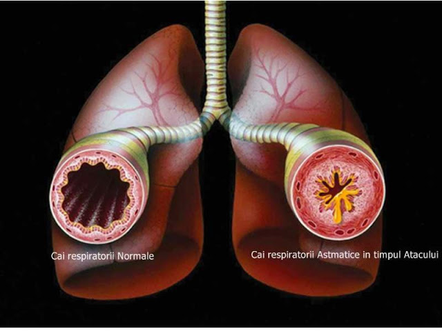 exista mai multe alimente care pot ameliora sau chiar vindeca astmul