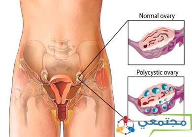 لمعرفة أيام التبويض وأنسب وقت للإخصاب وحدوث الحمل