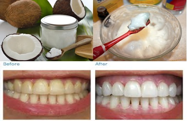 UNBELIEVABLE: This Oil Could Be More Effective Than Your Toothpaste! Find Out More Here!