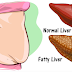 Liver Problem: Warning Signs Your Liver Is Overloaded of Toxins And Making You Fat