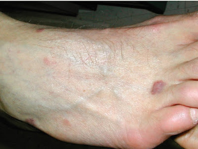Nodular Kaposi sarcoma skin lesions of the foot in a man with AIDS
