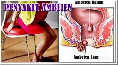 obat benjolan di anus paling ampuh di apotik