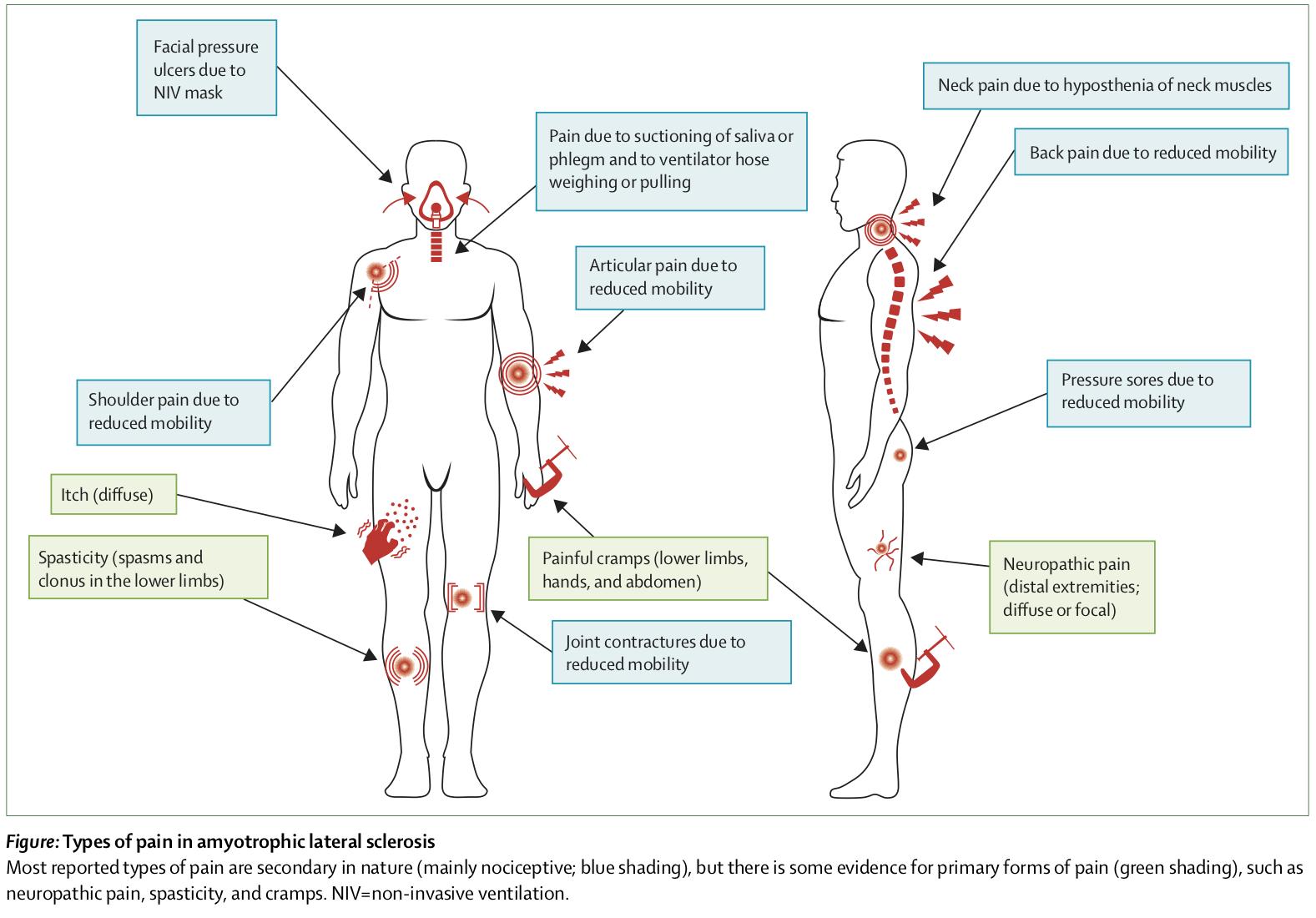 症状 Co2 ナルコーシス