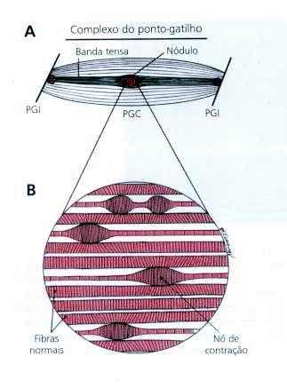 MIOTERAPIA - PONTO GATILHO - TRIGGER POINT