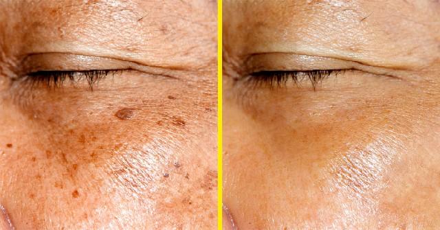 طرق لإزالة البقع الداكنة من بشرتك
