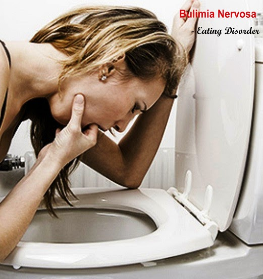 Bulimia Nervosa, An Eating Disorder