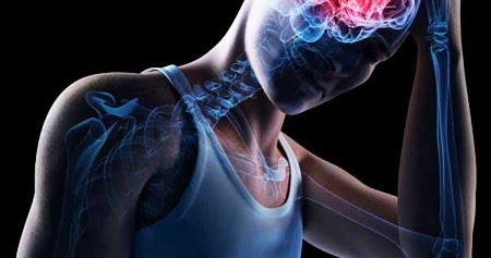 Lo que debes saber acerca de una conmoción cerebral
