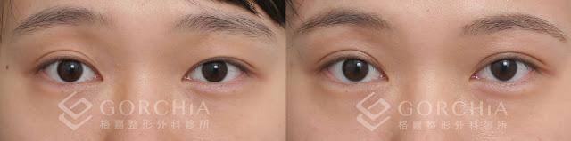 何格彰雙眼皮案例-31.%25E8%25A8%2582%25E6%259B%25B8%25E9%2587%259D%25E9%259B%2599%25E7%259C%25BC%25E7%259A%25AE-%25E8%2595%25AD%25E9%25A1%2598%25E5%25AF%25A7