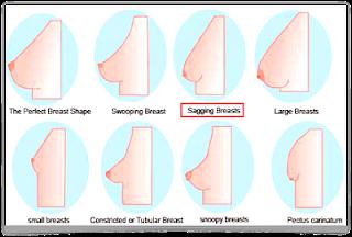 Normal Teen Breasts 49