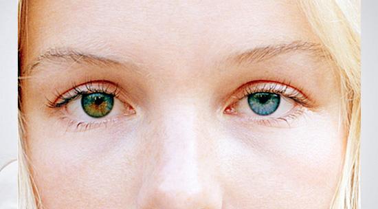 Curiosidades sobre os Olhos - heterocromia