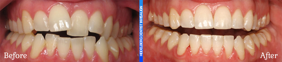 Invisalign Melbourne Before & After Smile Gallery