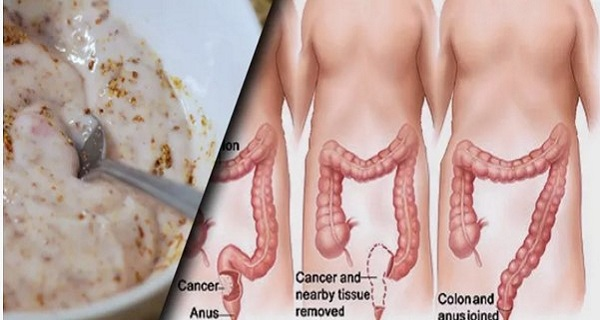 Clean-13-kilos-Of-Toxins-Accumulated-In-Your-Colon