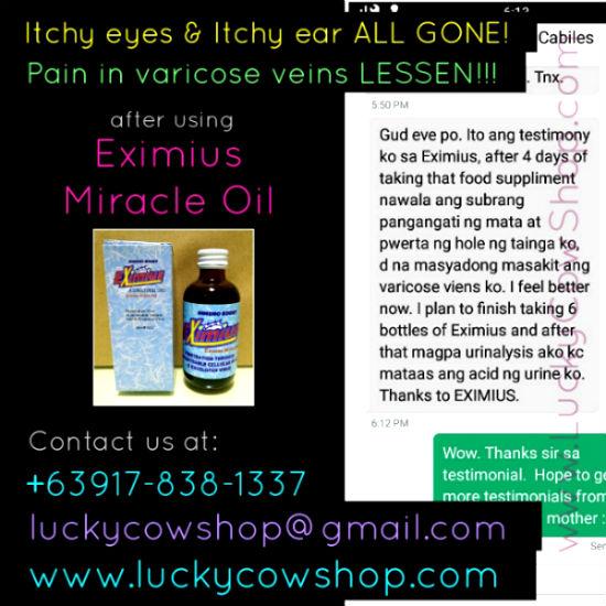 Eximius Oil Testimonial Allergy Varicose Veins