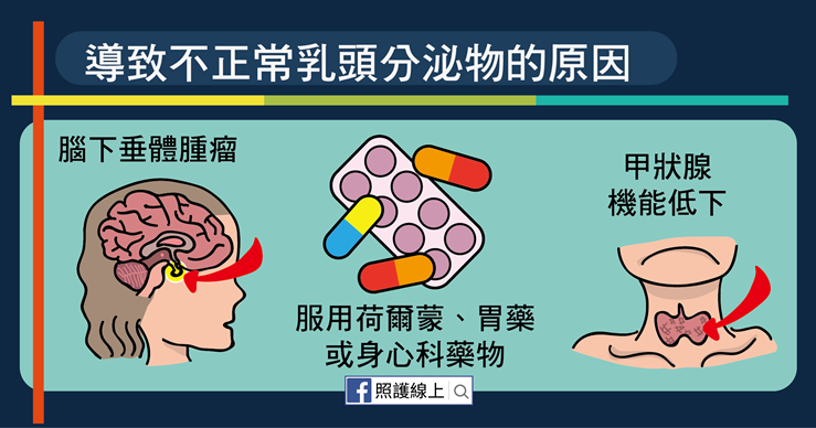 乳頭出現分泌物,到底正不正常?出現5症狀可能是「乳癌」