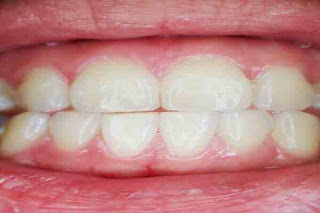 Home remedies for gingivitis in hindi