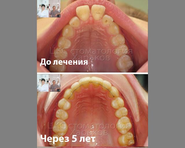Форма зубного ряда до и после ортодонтического лечения
