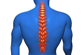 Ankylosing spondylitis - Academy Massage Therapy - Massage Therapist Winnipeg
