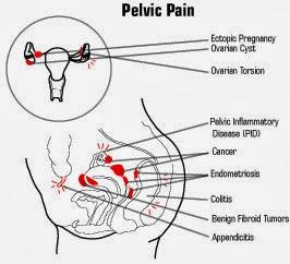 ICD 9 Code: ICD 9 Code For Pelvic Pain