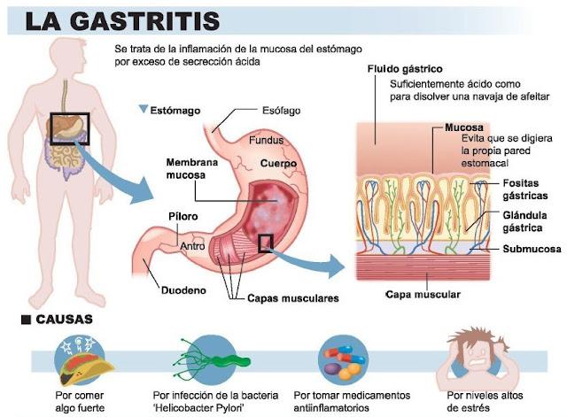 gastritis tratamiento