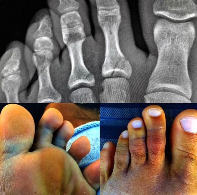 kelly slater toes xray