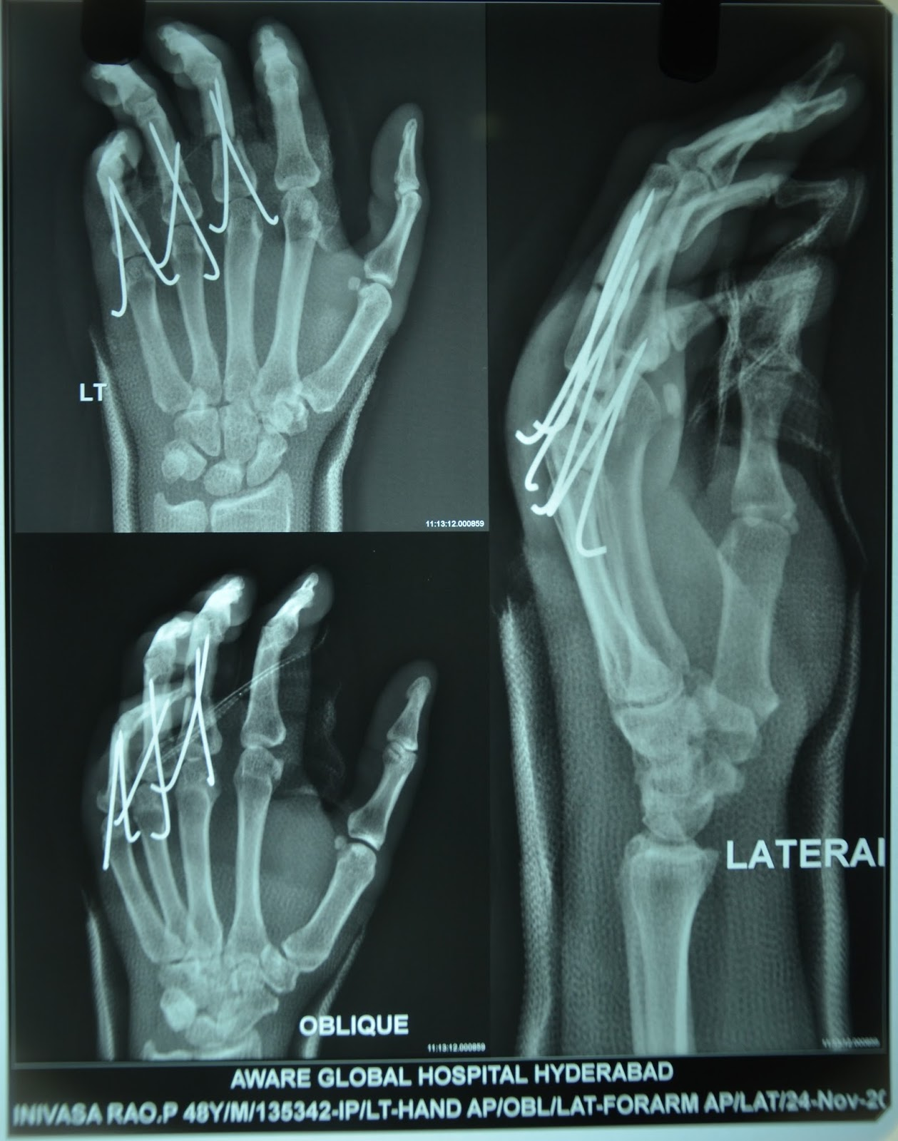 MAJOR CRUSH INJURY LEFT HAND WITH DISPLACED FRACTUURES OF PROXIMAL ...