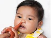 Cara mengatasi hidung tersumbat pada anak-anak