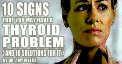 11291_10-signs-thyroid-problem-solutions