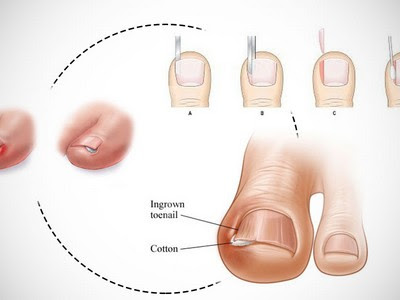 INGROWN TOENAILS with Get Rid Of The Foot Pain reviews