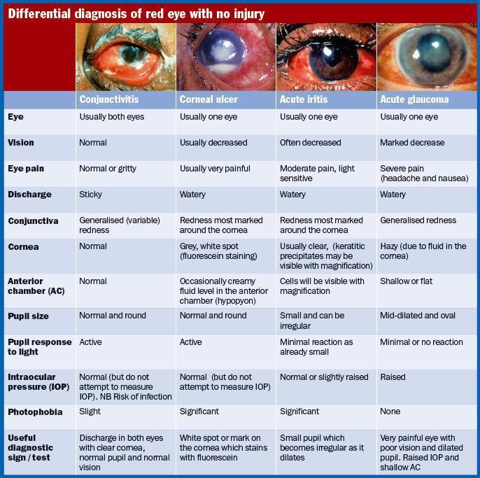 PLAB king: Acute Red Eye (807/1700)