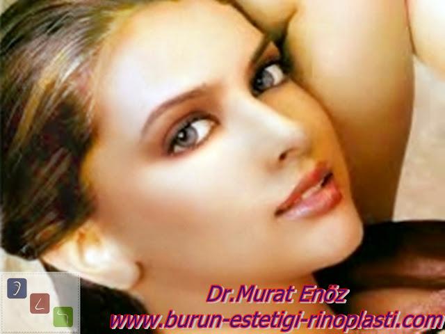Ekternal Strut Greft Yöntemi' nin Botox İle Burun Ucu Kaldırma Yöntemine Göre Üstünlükleri